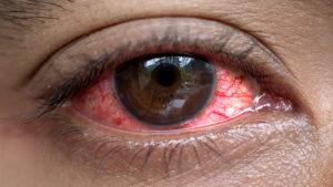 Silmäsairauksille