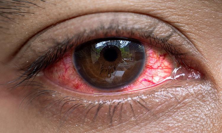 Statiinien käyttö altistaa silmäsairauksille